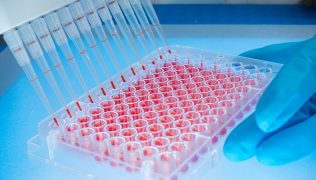 3D Cell Culture Harvesting
